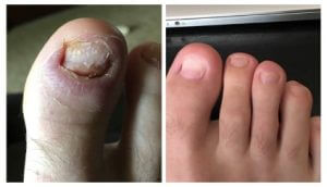 Toenail Fungus Treatment before/after