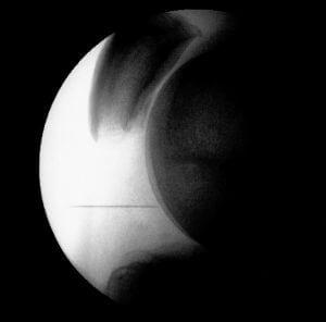 Fluoroscopy Arthritic Knee