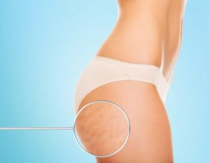 cellulite reduction graphic