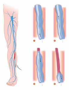 Endovenous Laser Ablation EVLA graphic