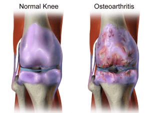 Osteoarthritis comparison graphic