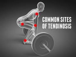 tendinosis body
