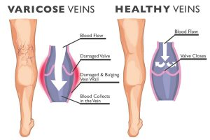 Varicose Veins comparison graphic