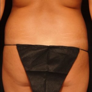 laser liposuction framing the buttocks - before photo