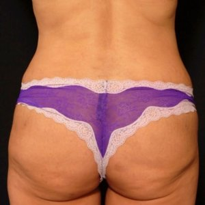 Laser liposuction framing the buttocks - after photo