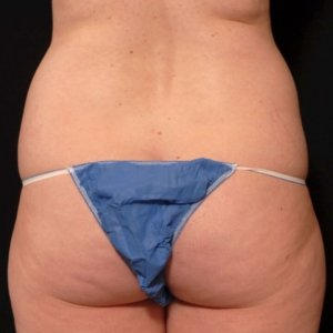laser liposuction framing the buttocks - before