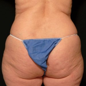 Liposuction Framing the buttock