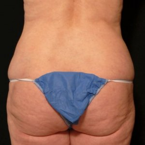 Liposuction Framing the buttock - after