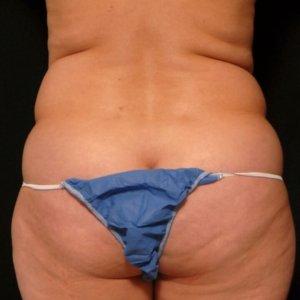Laser liposuction framing the buttocks - before
