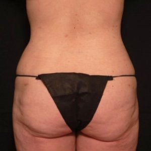laser liposuction framing the buttocks - after