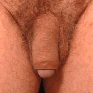 male fat grafting penis enhancement enlargement manshot - after