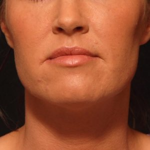 facial rejuvenation lip augmentation juvederm hyaluronic acid - before