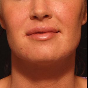 facial rejuvenation lip augmentation juvederm hyaluronic acid - after