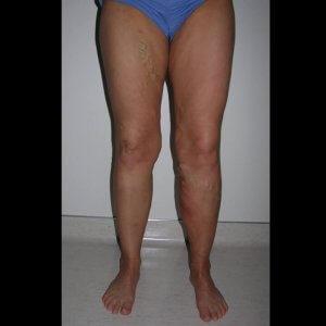 Varicose vein treatment - before photo
