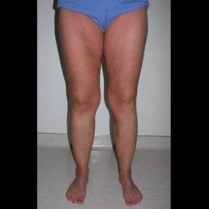 Varicose vein treatment - after photo
