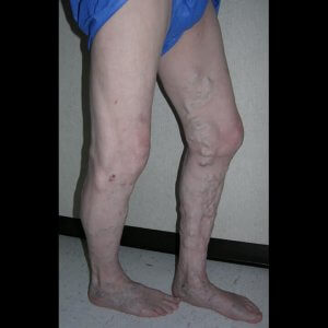 Varicose vein treatment - before photo
