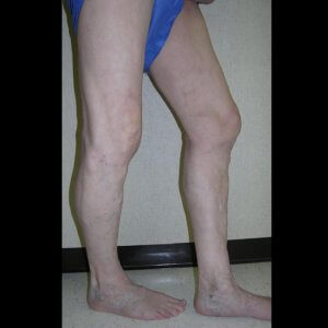 Varicose vein treatment - after photo