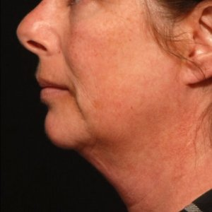 Laser liposuction lower face and chin - before