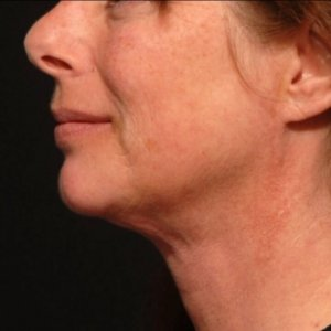 Laser liposuction lower face and chin - after