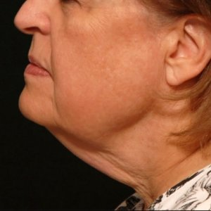 Female lower face chin laser liposuction - before