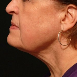 Female lower face chin laser liposuction - after