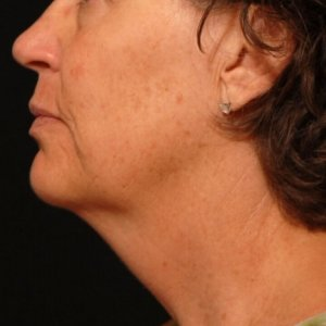 Female lower face, chin, and neck laser liposuction - before