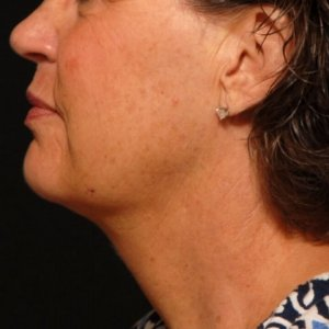 Female lower face, chin, and neck laser liposuction - after