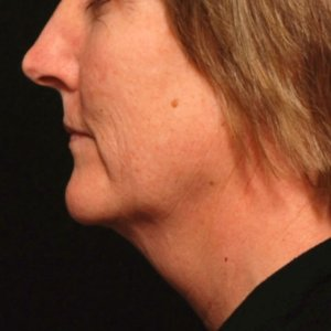 female laser liposuction lower face under chin neck - before