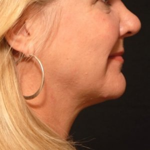 female laser liposuction lower face under chin neck - after