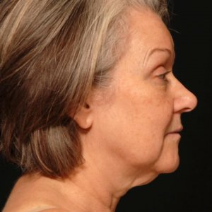 laser liposuction lower face under chin neck - before
