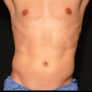 Male torso laser liposuction - before photo