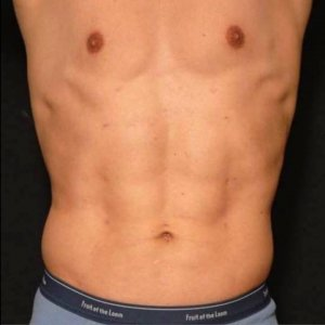Male torso laser liposuction - after photo