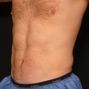 Male front torso, three quarters view - laser liposuction - after photo