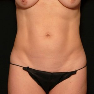 female laser liposuction front torso abdomen - before