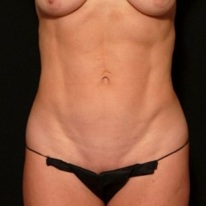 female laser liposuction front torso abdomen - after