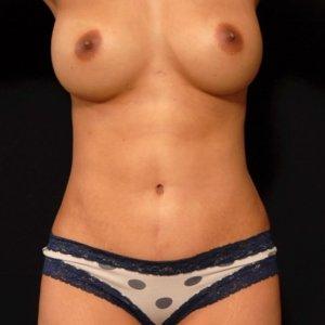female laser liposuction front torso abdomen - after