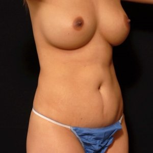 Female front torso, laser liposuction, three quarters view - before photo