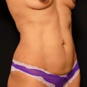 laser liposuction front torso abdomen after