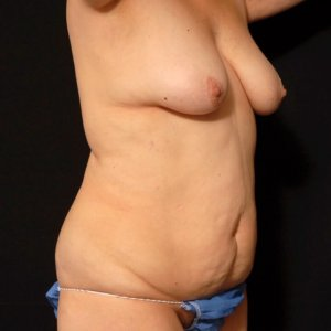 laser liposuction female front torso abdomen - before