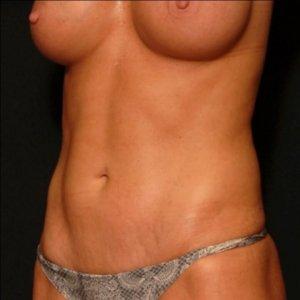 Female laser liposuction front torso - after photo