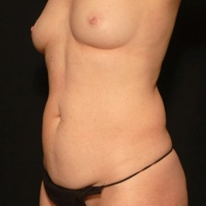 laser liposuction female front torso at Hogue Clinics