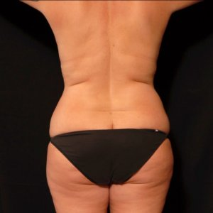 female laser liposuctio back torso flanks sacrum bra fat - after