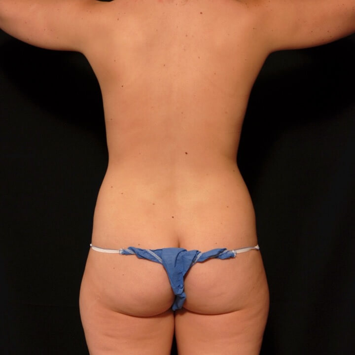 Female lower back and upper thighs laser liposuction - before