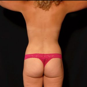 Female lower back and upper thighs laser liposuction - after