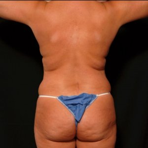 Laser liposuction female back - before photo