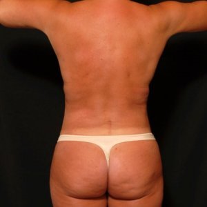 Laser liposuction female back - after photo