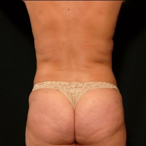 laser liposuction back torso flanks sacrum bra fat -after