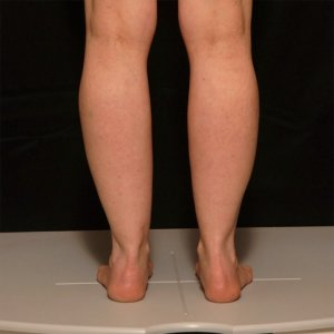 liposuction results of calves