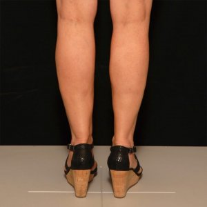 laserliposuction female calves lower leg - after