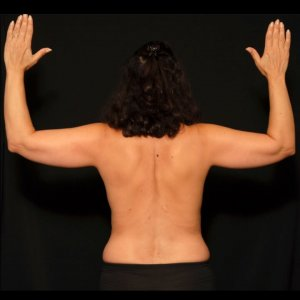 female laser liposuction upper arms - before